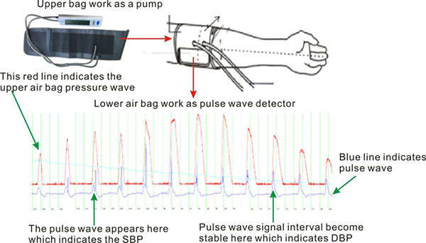 How Does Pulse Wave Blood Pressure Monitor Measure?