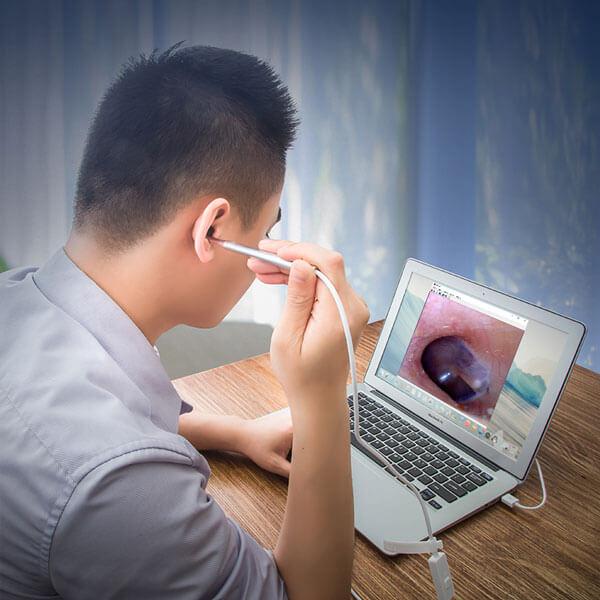 laryngoscope picture